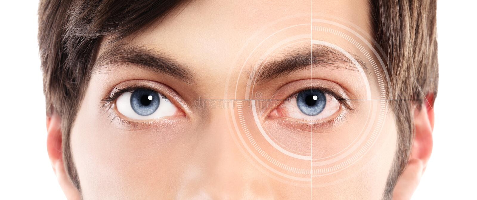 Closeup of blue eyes from a young man red and irritated eye with. Laser hologram on her eye in white background stock photo