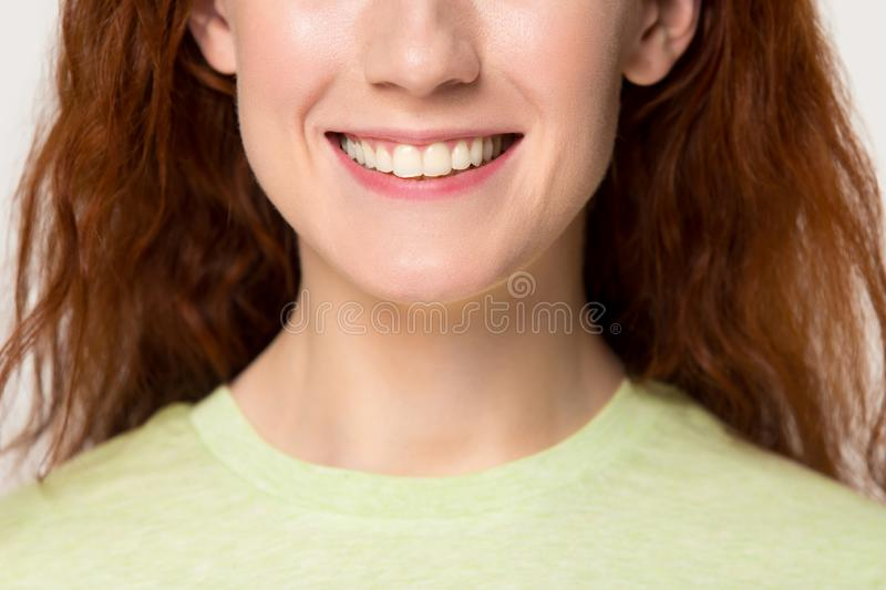 Closeup caucasian red-headed woman having ultra white toothy smile stock photo