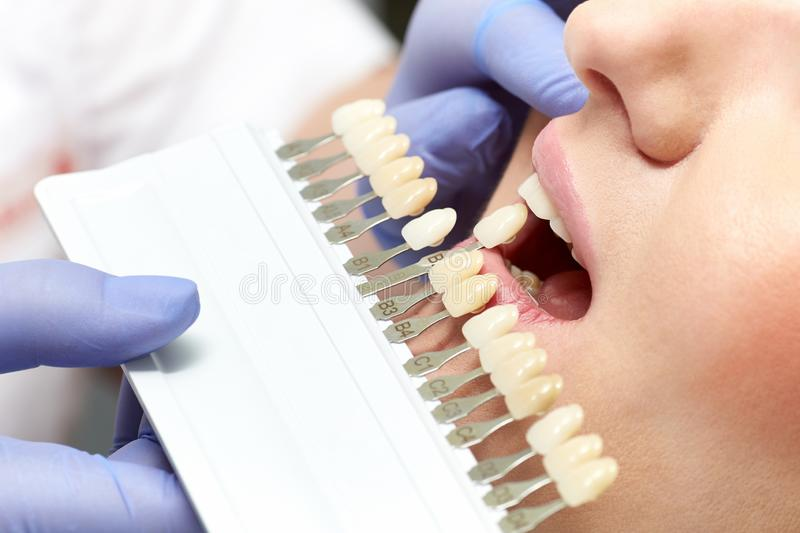 Closeup of color matching dentures in the dental clinic. At the doctor`s office stock image
