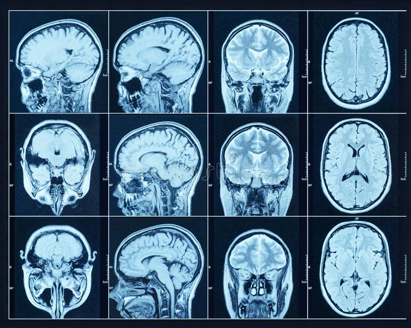Closeup of a CT scan with brain. Science and education mri background. royalty free stock image