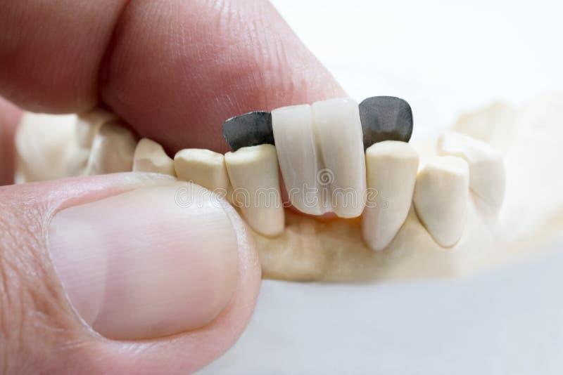 Dental maryland bridge. Closeup / Dental maryland bridge / Crown and bridge equipment and model express fix restoration royalty free stock photos