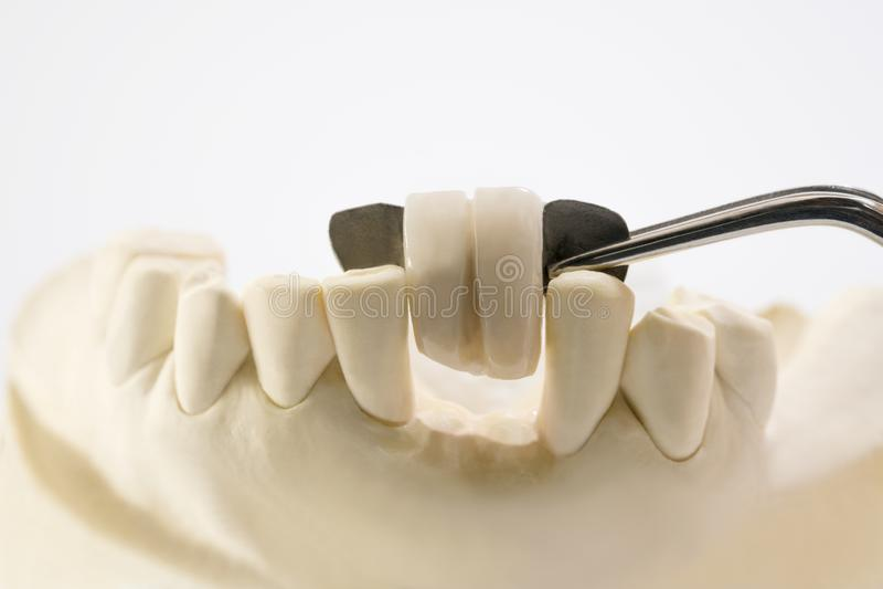 Dental maryland bridge. Closeup / Dental maryland bridge / Crown and bridge equipment and model express fix restoration stock photography