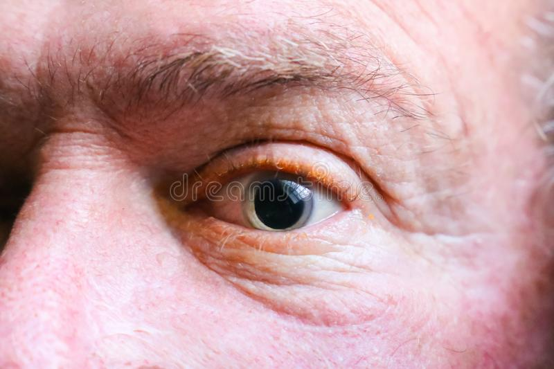 Closeup of a dilated eyeball. A man just had his eyes dilated by an ophthalmologist, or eye doctor, as part of a full examination. Eye doctor was looking for royalty free stock image