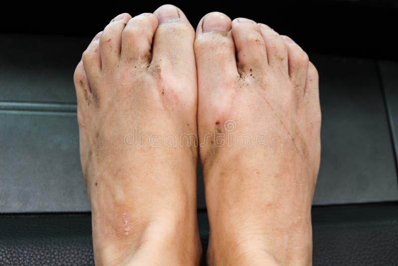 Closeup of dirty feet after wearing flip flops.  stock photos
