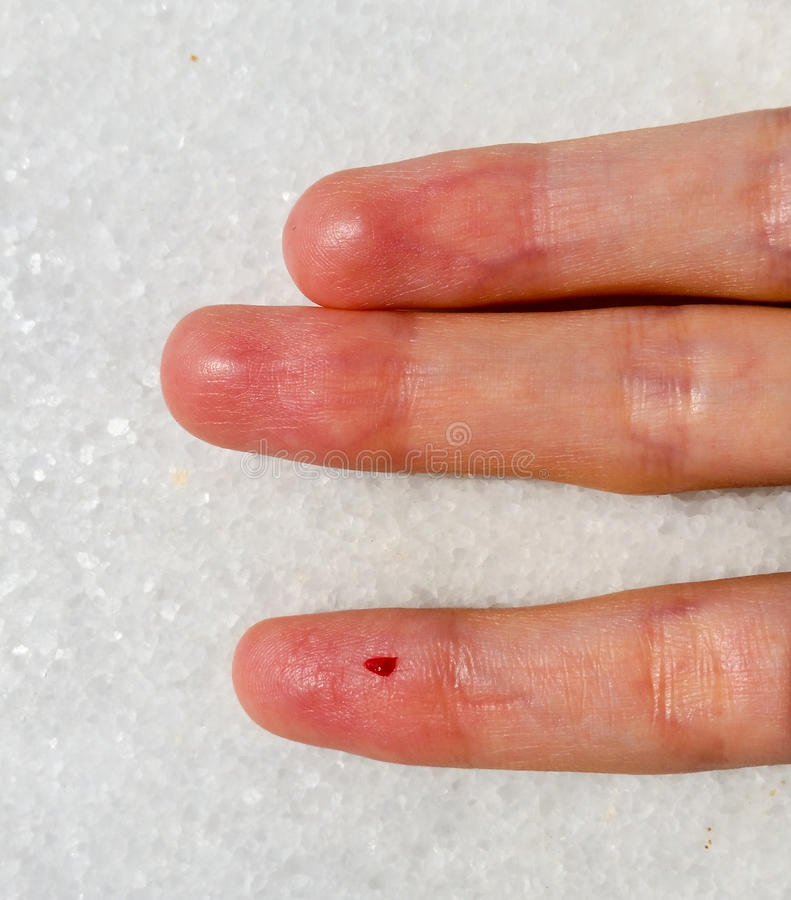Download Closeup Of Female Finger With Blood Drop For Blood Testing Stock Photo - Image of bloody, clinic: 83704238