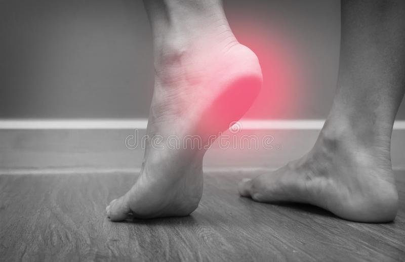 Closeup of a female foot heel pain with red spot, plantar fasciitis stock photography