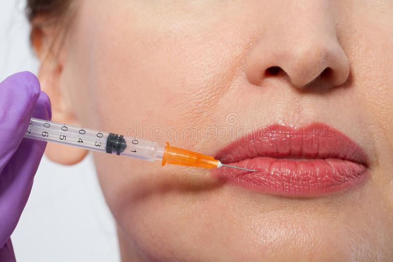 Closeup of female mouth and lips with botox and syringe needle in lip. Selective focus and macro face. stock photography