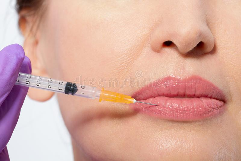 Closeup of female mouth and lips with botox and syringe needle in lip. Selective focus and macro face. stock images
