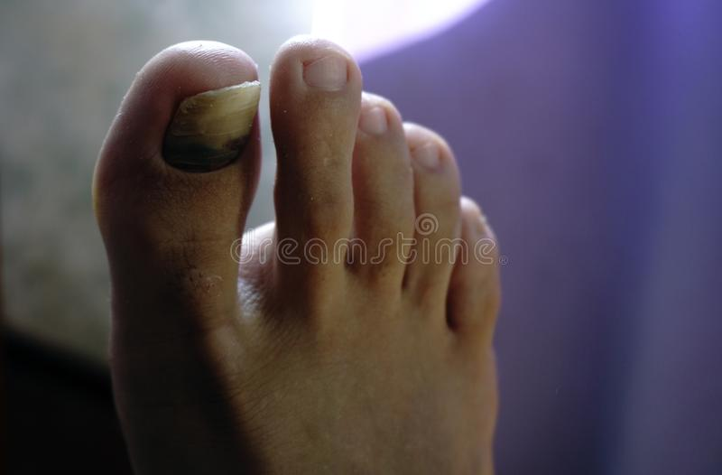 Closeup of a foot with arthritis, damaged nails because of fungus and athlete`s foot royalty free stock photos