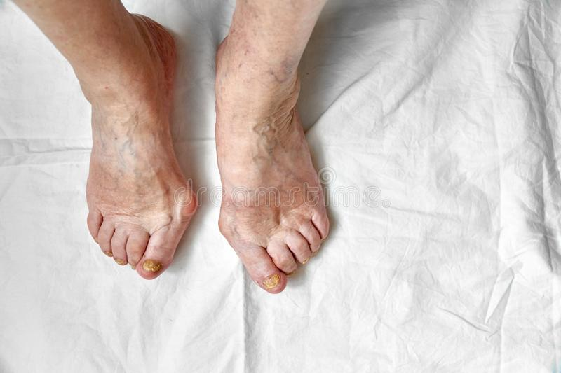 Closeup of a foot with damaged nails because of fungus. Elderly woman legs. Diabetis. Closeup of a foot with damaged nails because of fungus. Elderly woman legs stock image