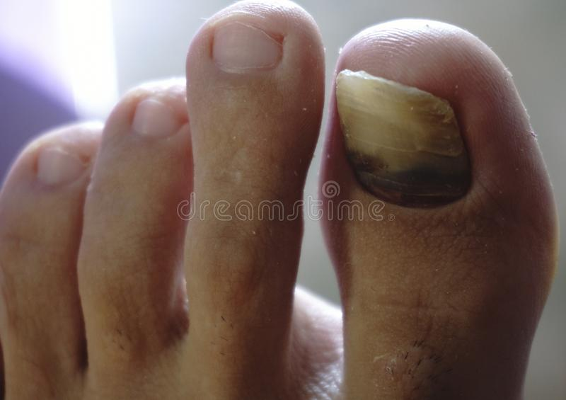 Closeup Of A Hairy Human Foot And Toes With A Cracked And Black ...