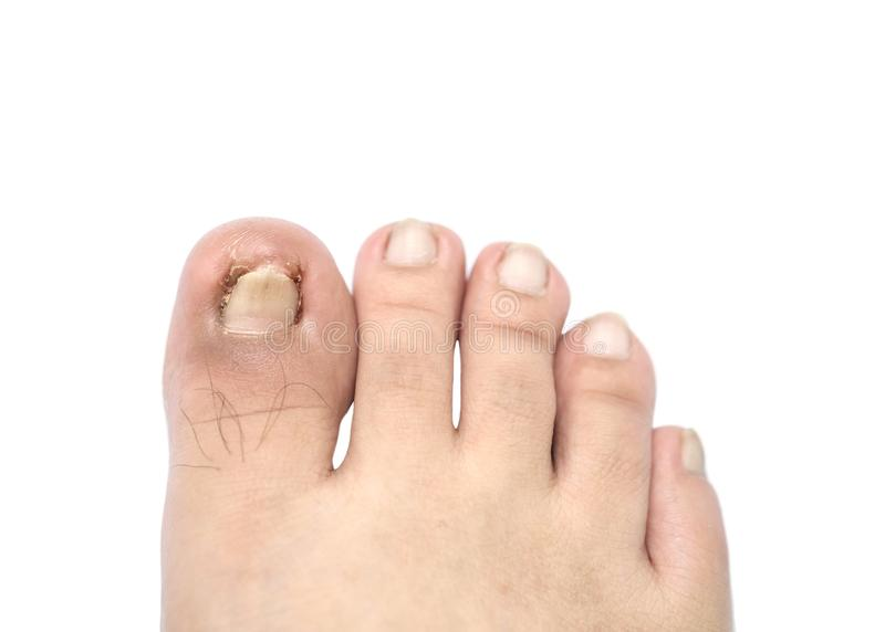 Closeup Ingrown Nail At The Big Toe Of A Man Isolated On White ...