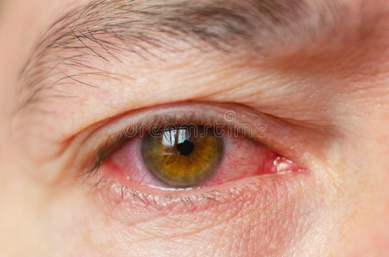 Closeup irritated infected red bloodshot eyes, conjunctivitis royalty free stock photography
