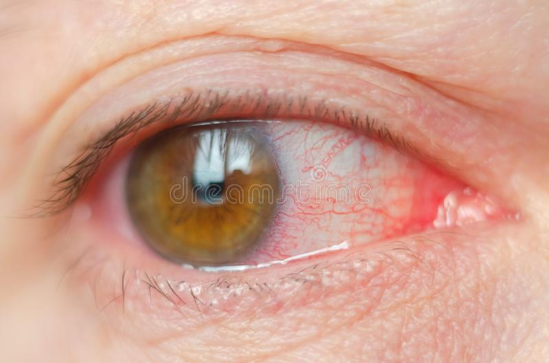 Closeup irritated infected red bloodshot eyes, conjunctivitis stock photography
