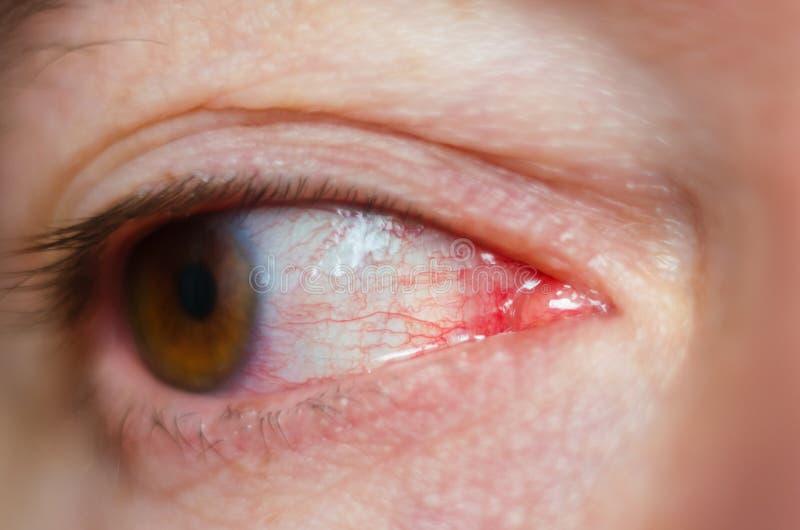 Closeup irritated infected red bloodshot eyes, conjunctivitis.  stock photo