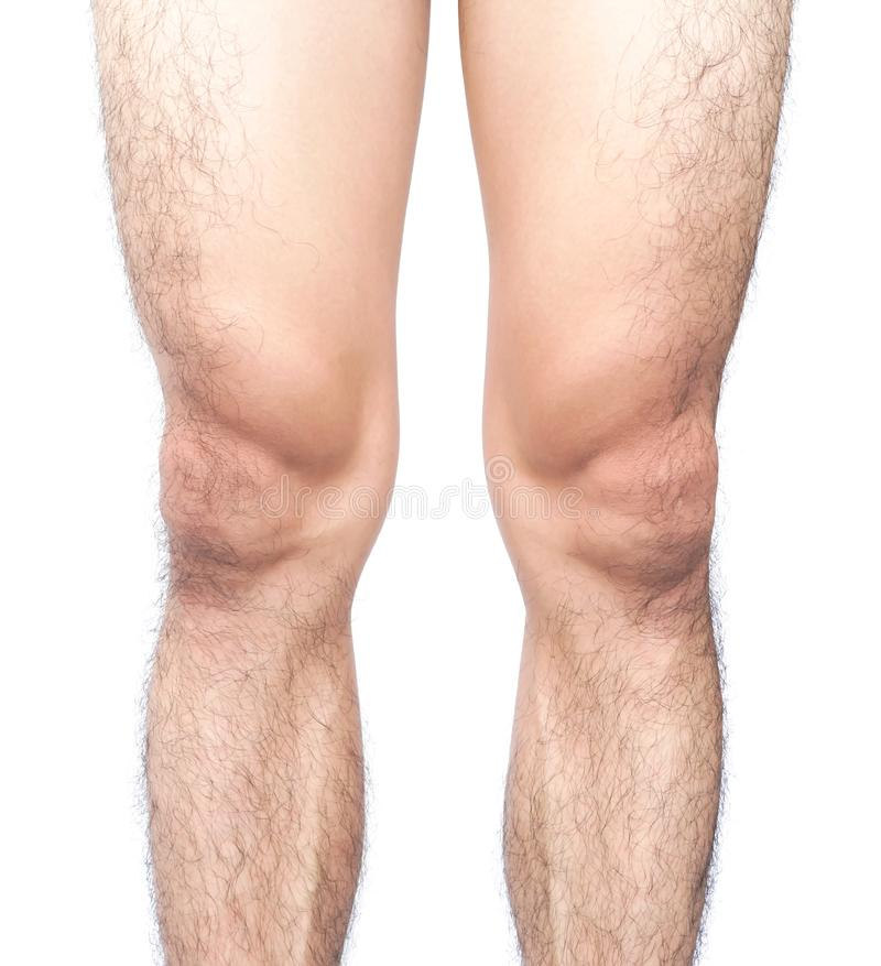 Closeup legs men skin and hairy with white background, health ca royalty free stock images