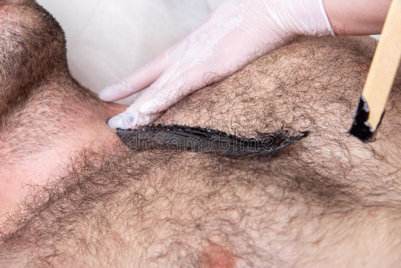 Closeup of male chest with hair and wax. Professional shugaring master in gloves makes depilation to a young man in the salon royalty free stock photos