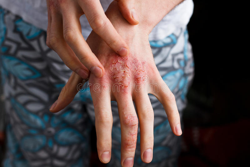 Closeup men itching and scratching by hand. Psoriasis or eczema on the hand. Atopic allergy skin with red spots stock photography