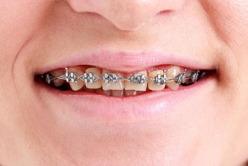 Teenage girl with braces on her teeth. stock images
