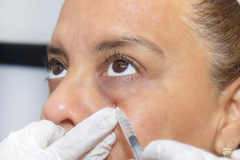 Closeup Of Platelet Rich Plasma PRP Cosmetic Therapy Near A Woman`s Eyes, Being Injected With Needle Poking. Closeup of Platelet Rich Plasma PRP Cosmetic Therapy stock photography