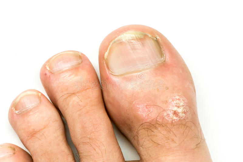 Closeup of Psoriasis vulgaris and fungus on the mans foot finger nails with plaque, rash and patches, on white background.  royalty free stock images