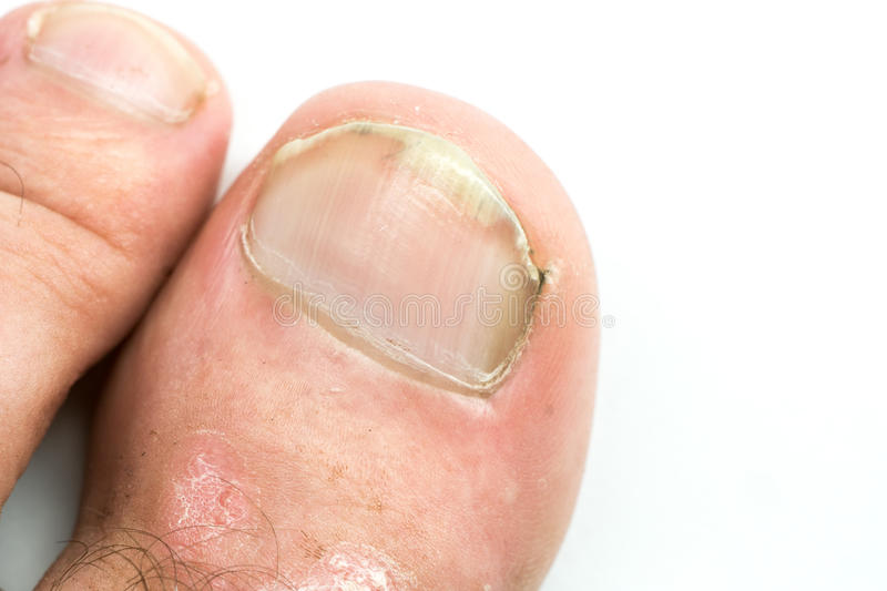 Closeup of Psoriasis vulgaris and fungus on the mans foot finger nails with plaque, rash and patches, on white background.  stock photography