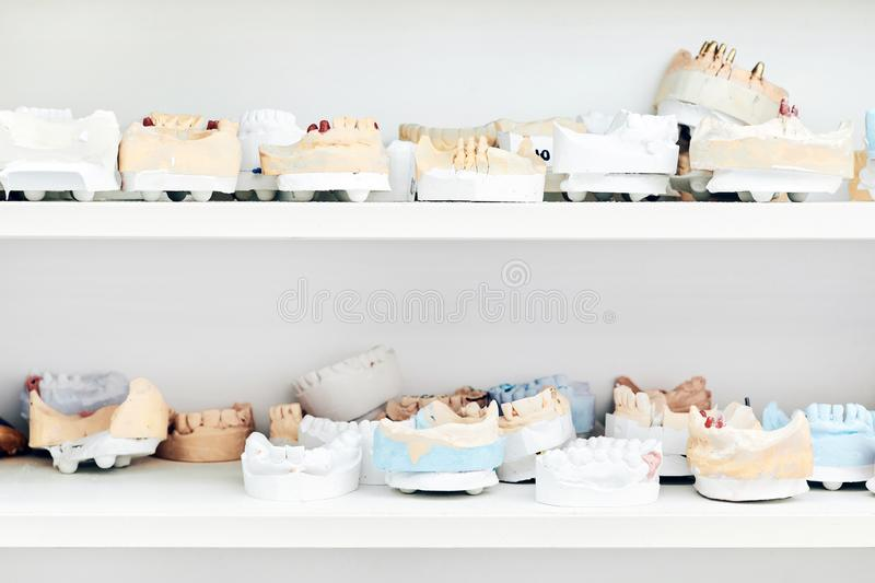 A closeup of a shelf with the casts of human teeth and dentures stock photography