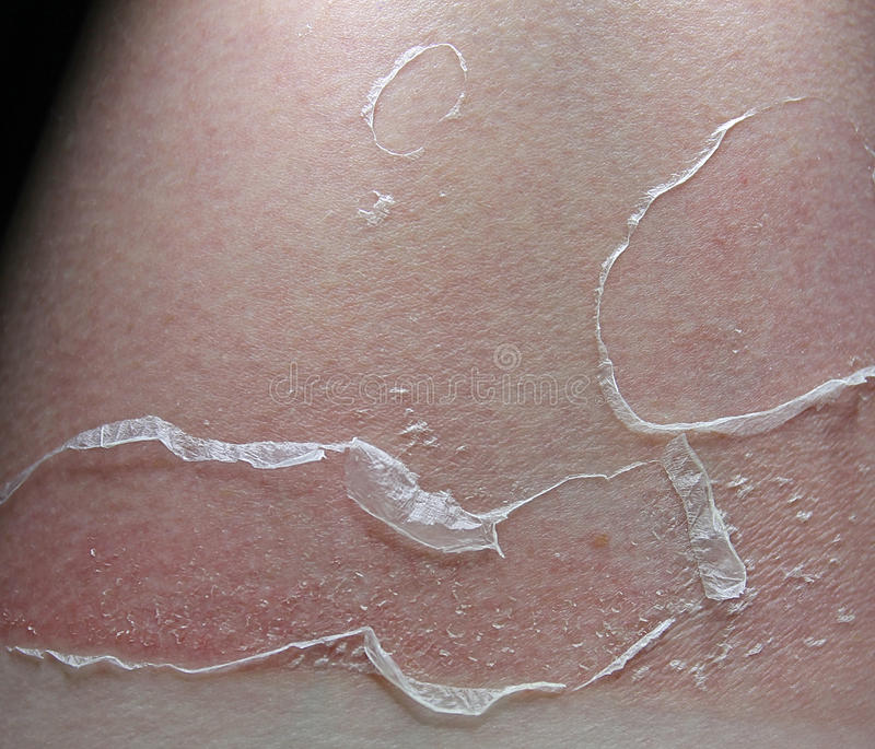 Peeling sunburn stock photography