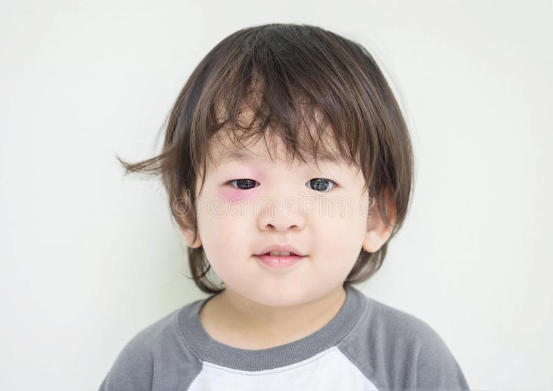 Closeup swollen eye of kid from insect bite with red bruise but he can smile royalty free stock image
