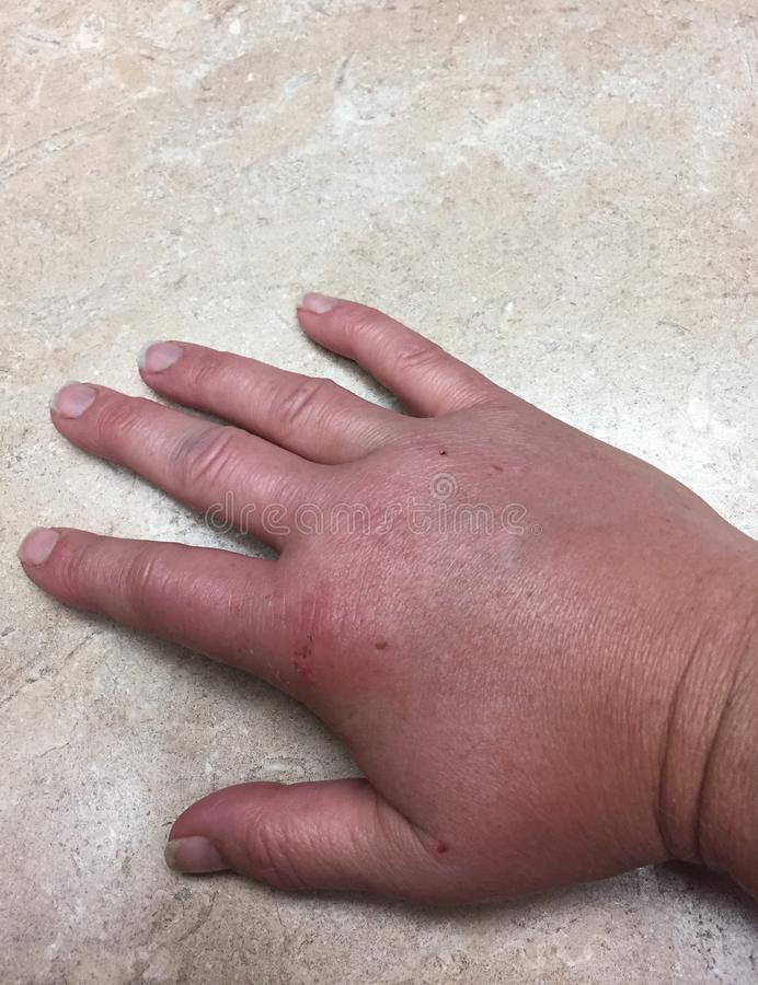Closeup of swollen hand with bug bite and red skin stock images