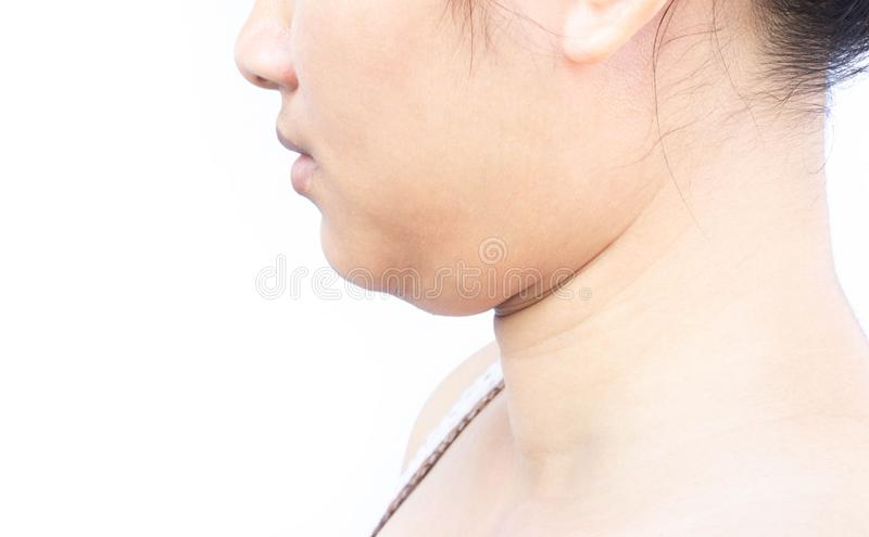 Closeup woman fat on second chin, health care and beauty concept royalty free stock photography
