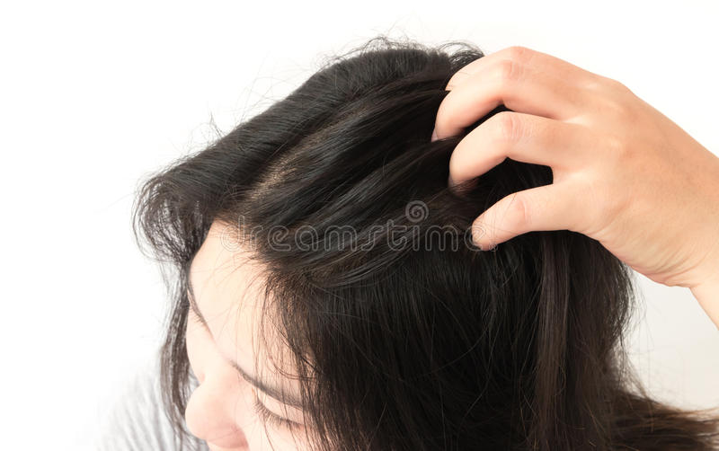 Closeup woman hand itchy scalp. Hair care concept stock photography