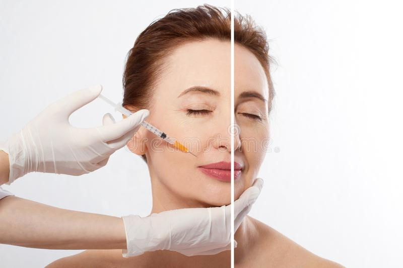 Closeup woman middle age face before after collagen face injection. Wrinkle anti aging concept. Beauty cosmetic procedures. stock photography
