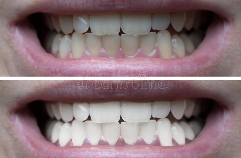 Teeth whitening before after. Closeup of woman`s teeth before and after whitening stock image