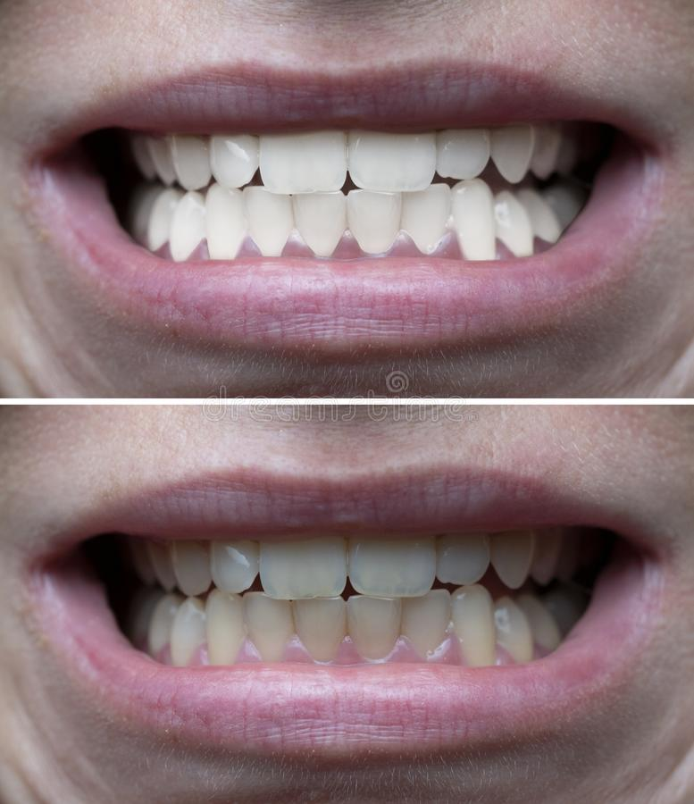 Teeth whitening before after. Closeup of woman`s teeth before and after whitening royalty free stock photo