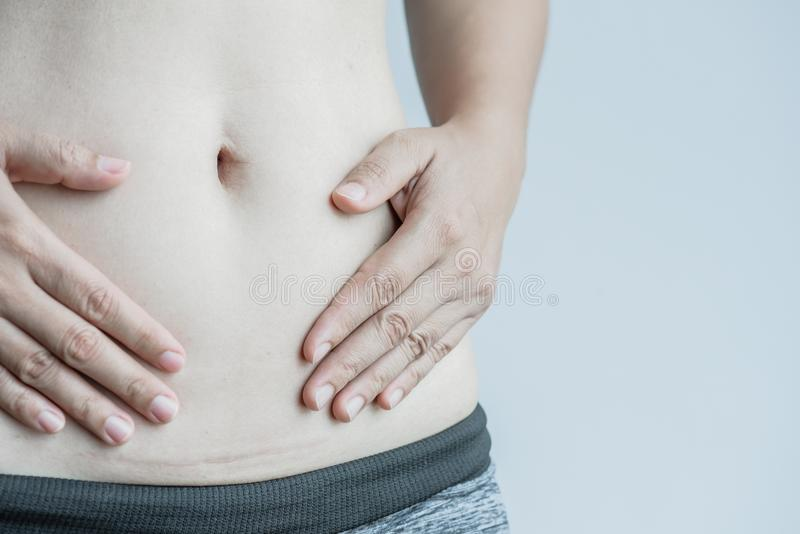 Closeup of woman showing on her belly dark scar. From a cesarean section stock photography