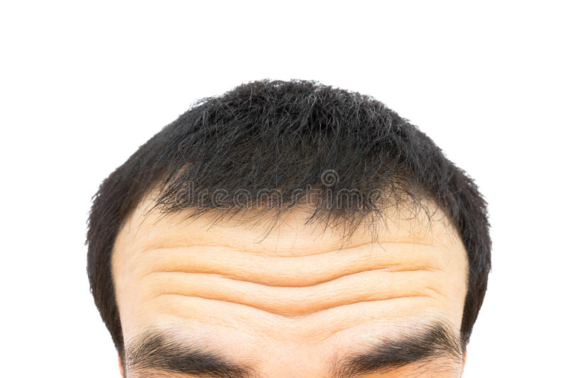 Closeup wrinkles on forehead young man, Hair loss for health car stock images
