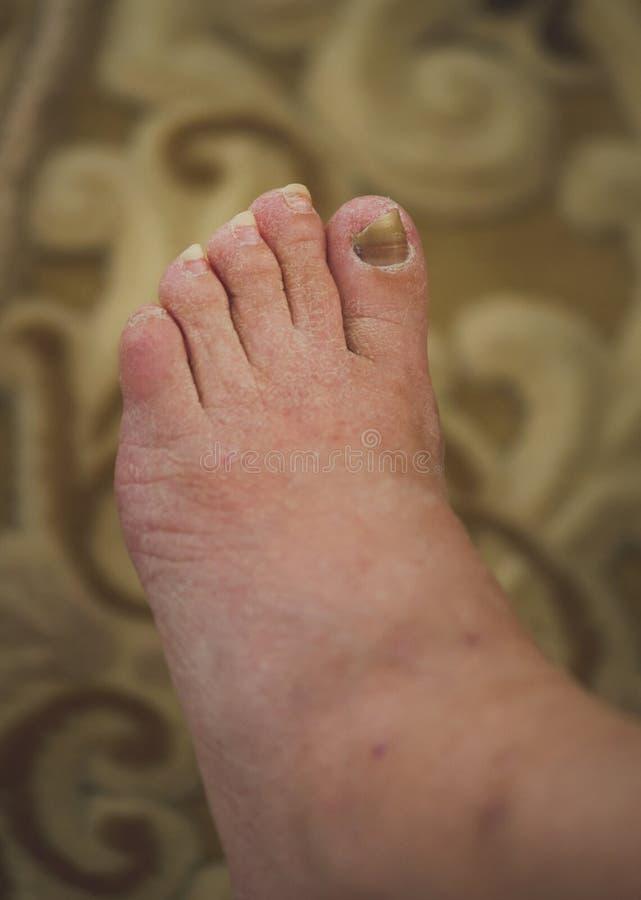 Foten med skadadt spikar arkivbilder