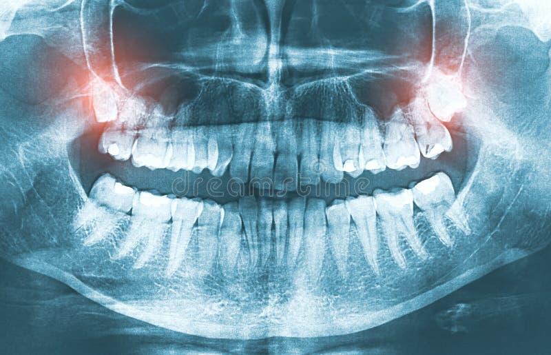 Closeupen av tänder för vishet för röntgenstrålebilden växande smärtar begrepp royaltyfria bilder