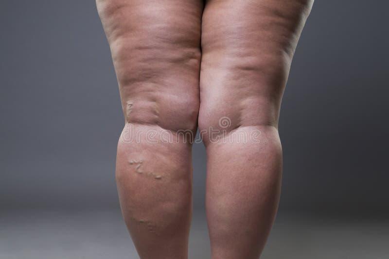 Closeupen för åderbråcks åder, fet kvinnlig cellulite lägger benen på ryggen royaltyfri foto