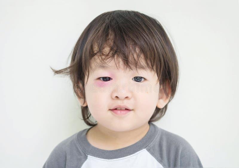 Closeupen svällde ögat av ungen från kryptugga med det röda blåmärket men honom kan le royaltyfri bild