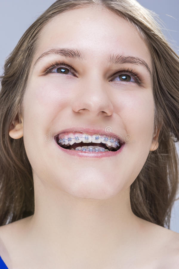 Closeupstående av den Caucasian kvinnliga tonårs- flickan med tandkonsoler royaltyfria foton