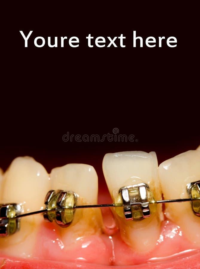 Closing da abertura com cintas dentais fotos de stock