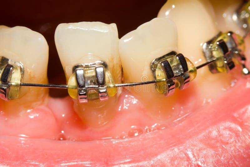Closing des Abstandes mit zahnmedizinischen Klammern stockfotografie
