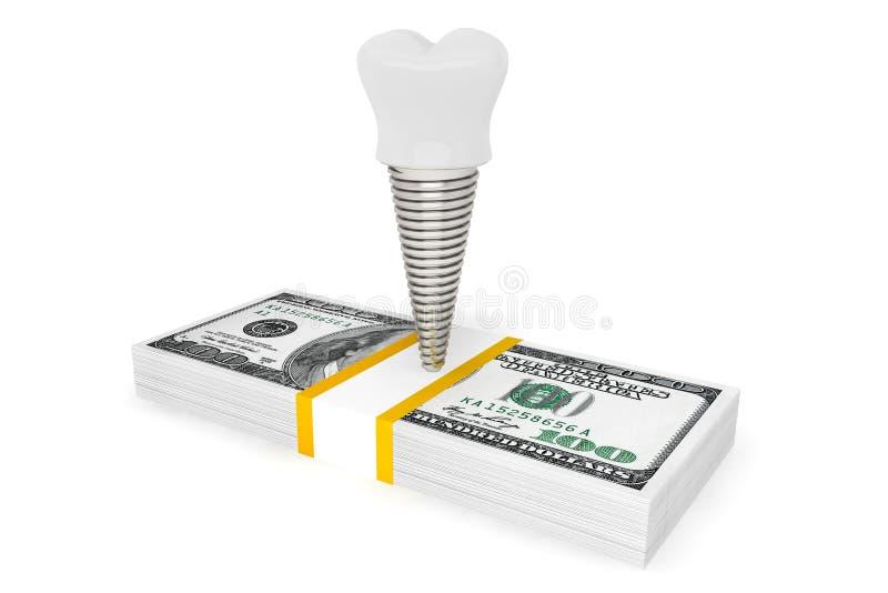 Coût de concept dentaire Implant de dent avec l'argent illustration de vecteur