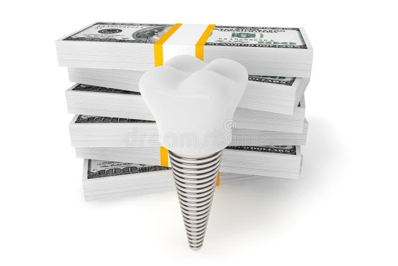 Coût de concept dentaire Implant de dent avec l'argent illustration libre de droits