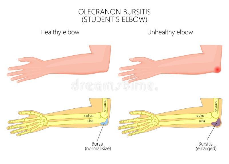 Codo de la bursitis o del estudiante del olecráneo stock de ilustración