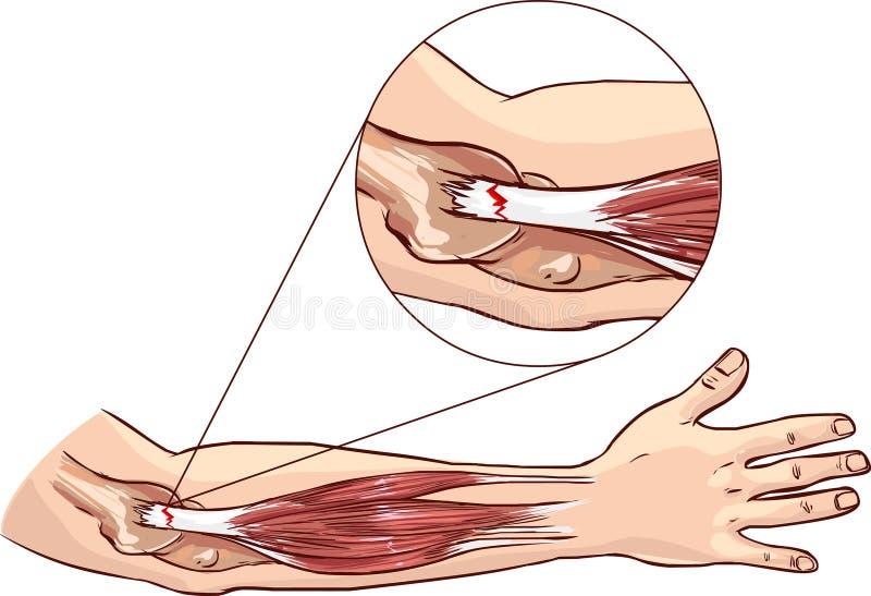 Codo de tenis - rasgue en el tendón común del extensor del brazo libre illustration