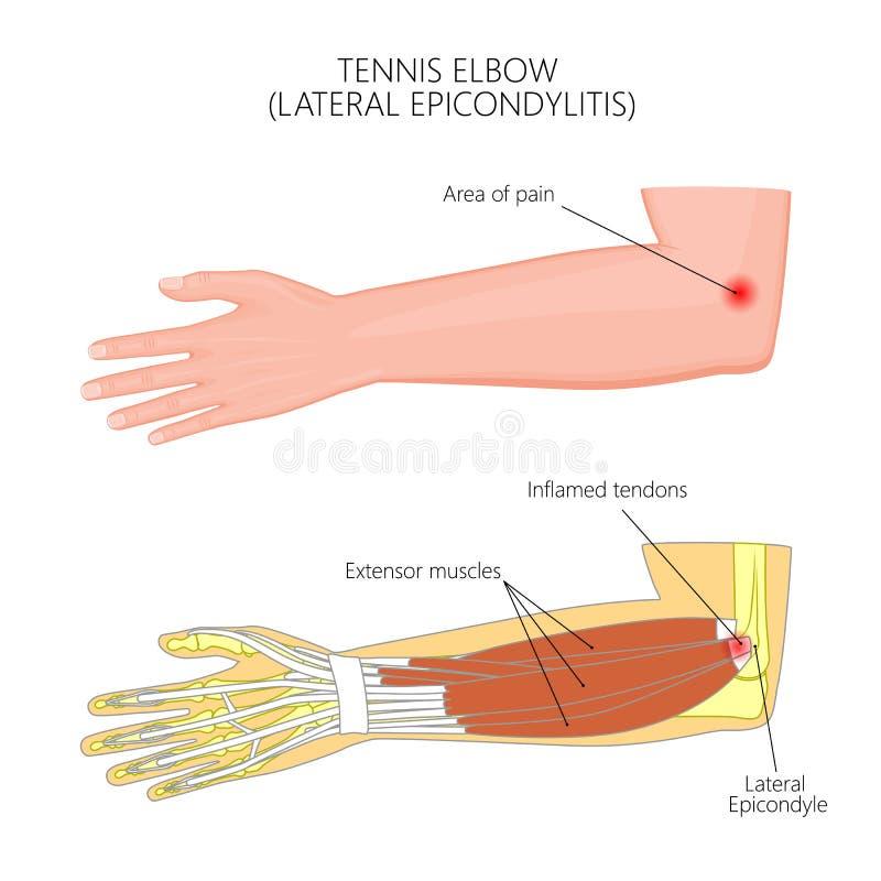 Codo lateral de la epicondilitis o de tenis ilustración del vector