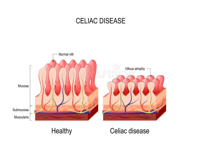 Coeliac disease. celiac disease. stock illustration